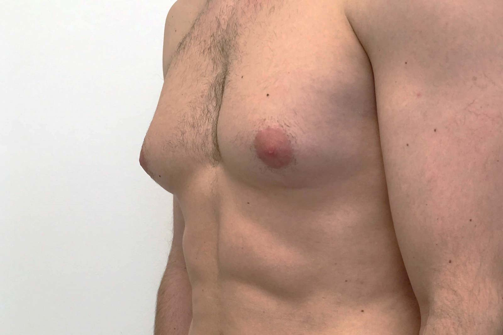 breast-male-reduction